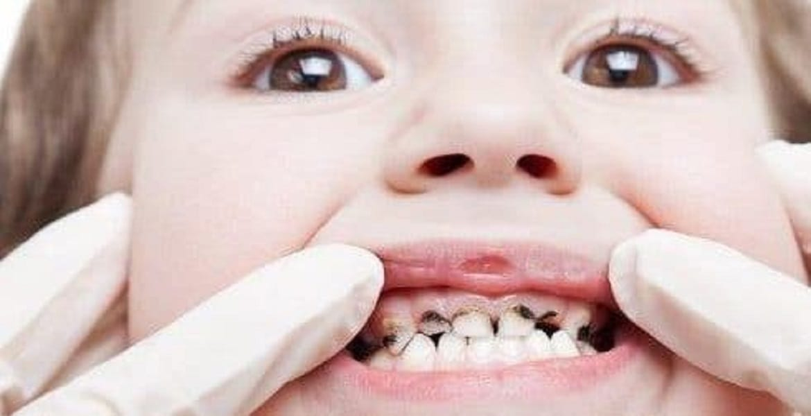 4. Young child with gross tooth decay requiring multiple extractions of baby teeth