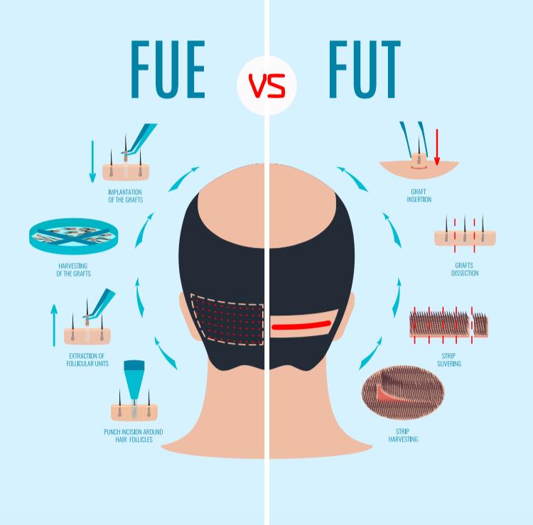 fue vs fut.png