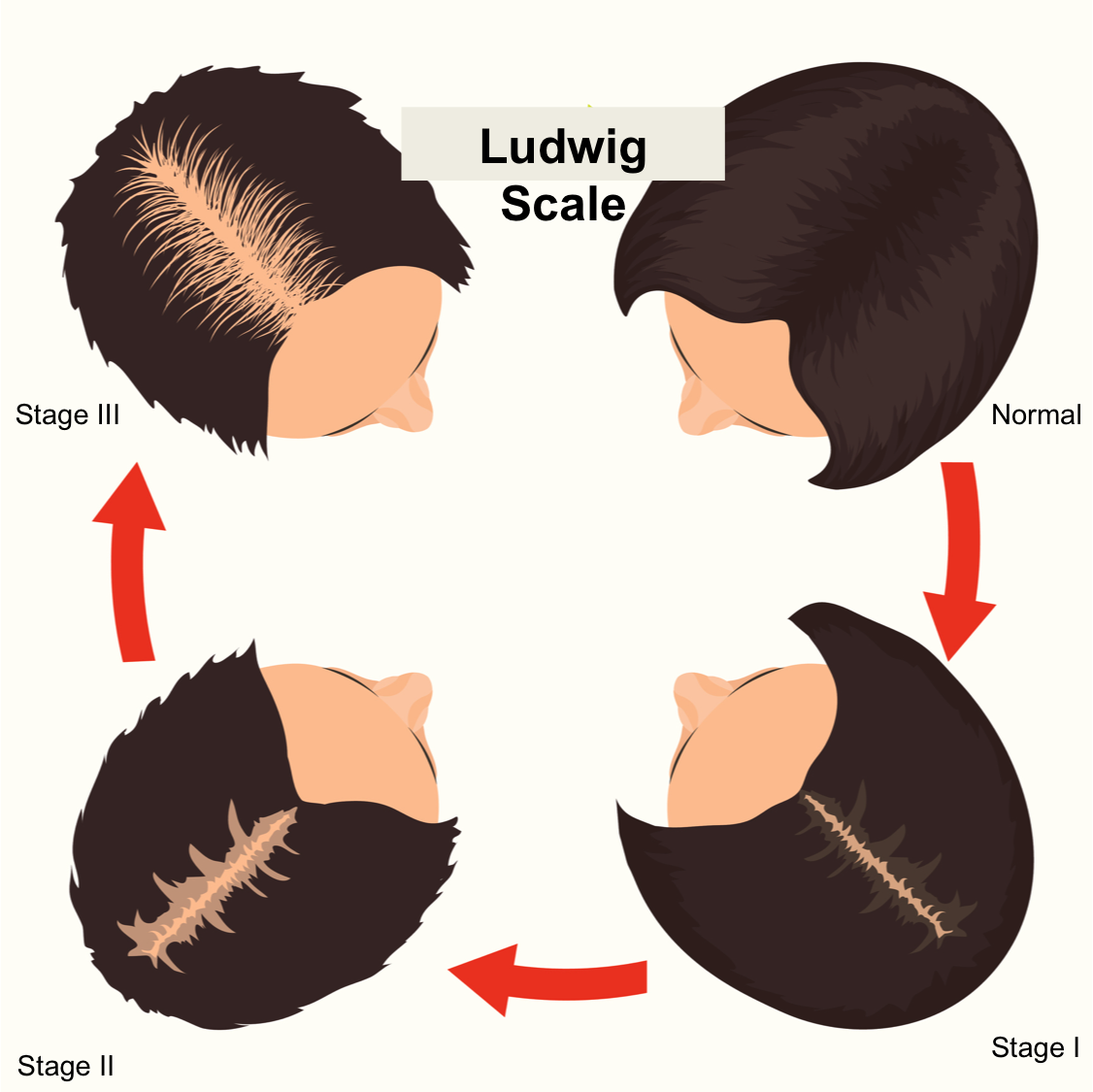 ludwig scale.png
