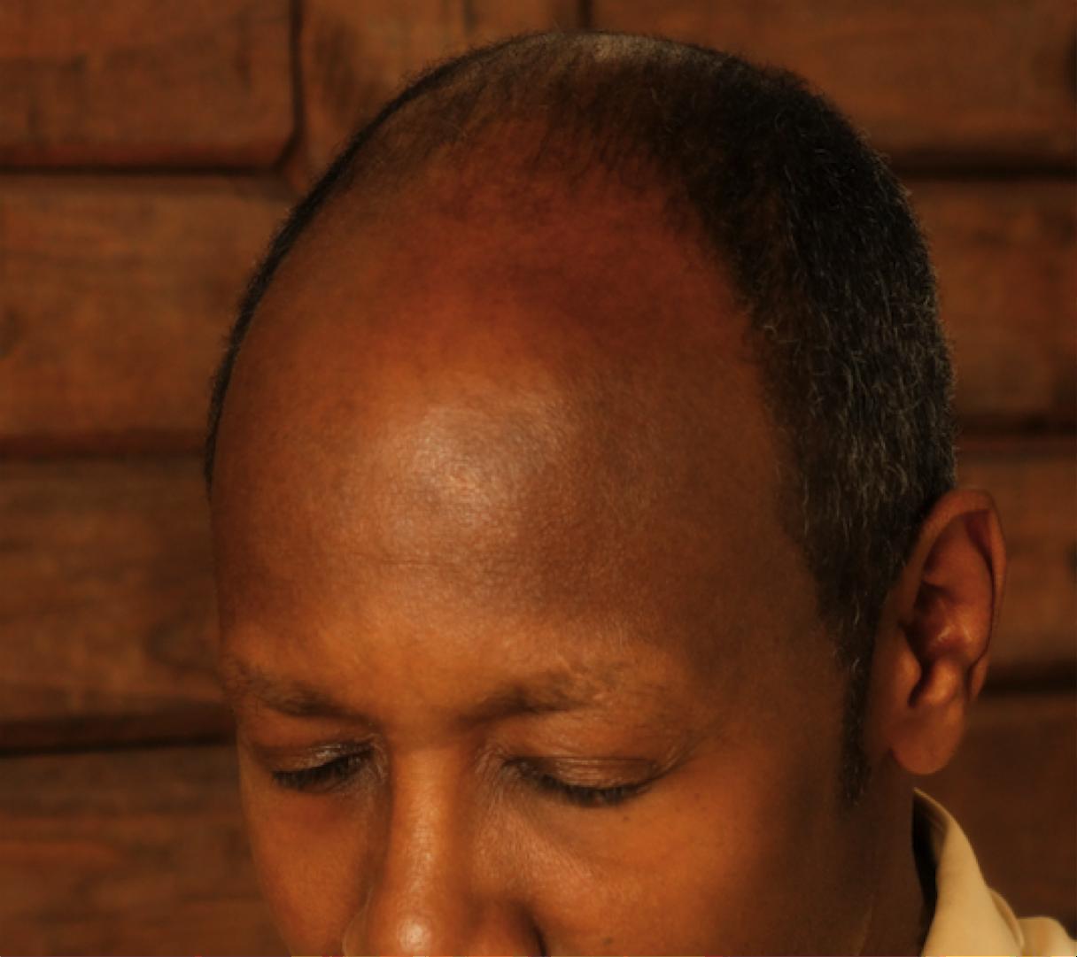 bald black man.png