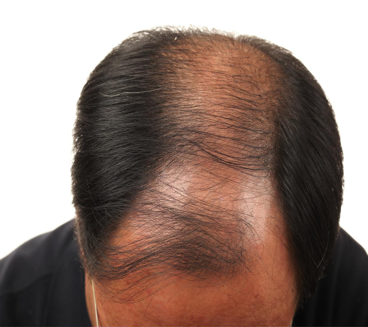 bald indian man.png