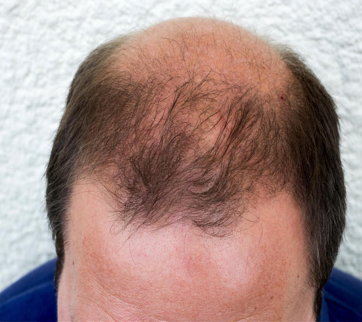 bald white man.png