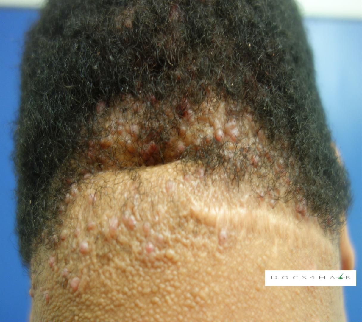 Folliculitis keloidalis.png