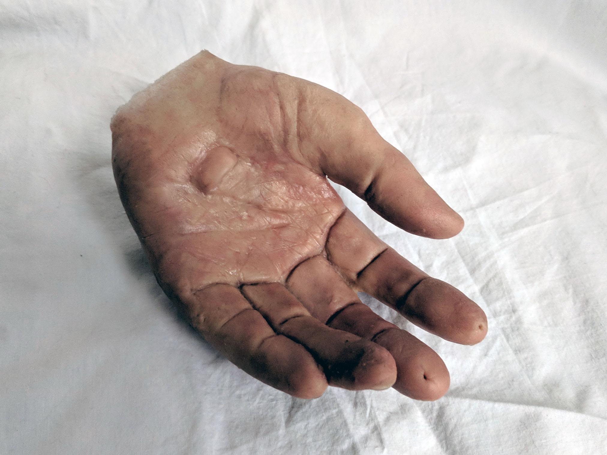 Prosthetic hand (2).jpg