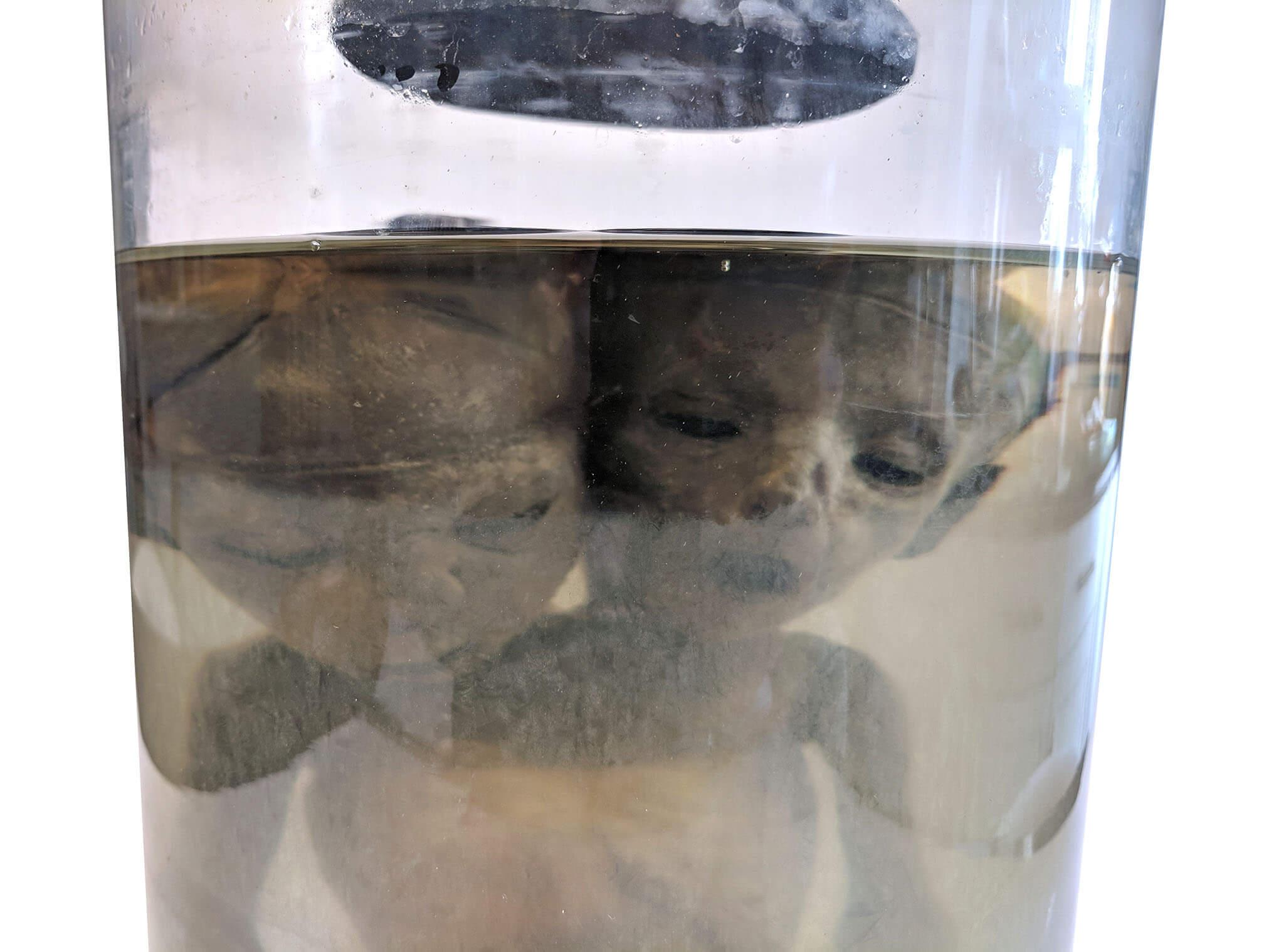 Two-headed baby (2).jpg