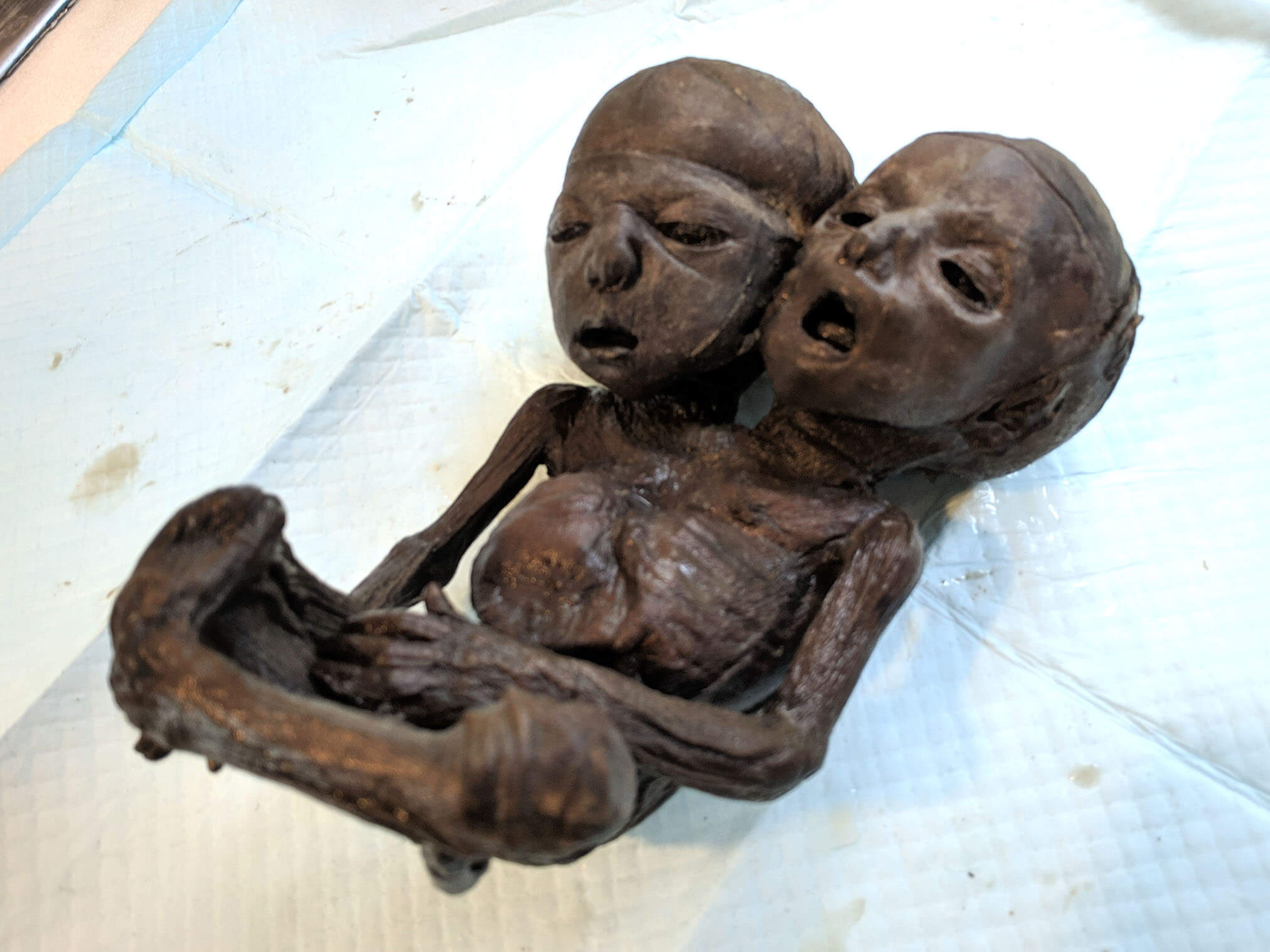 Two headed baby (1).jpg
