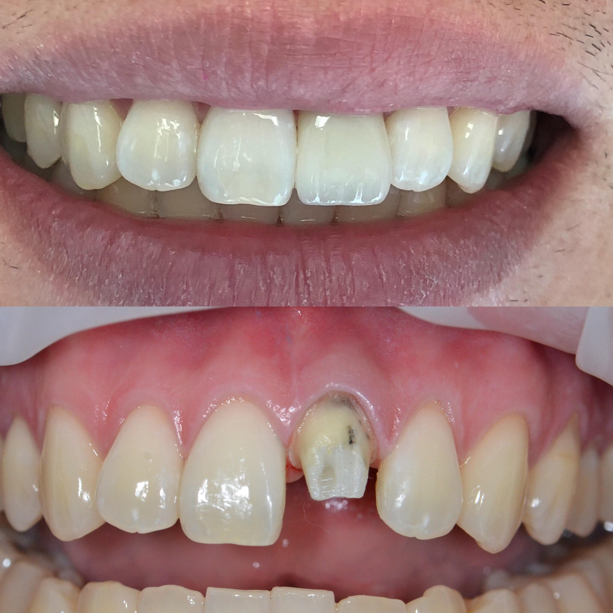 Single Tooth Restoration to give back confidence.