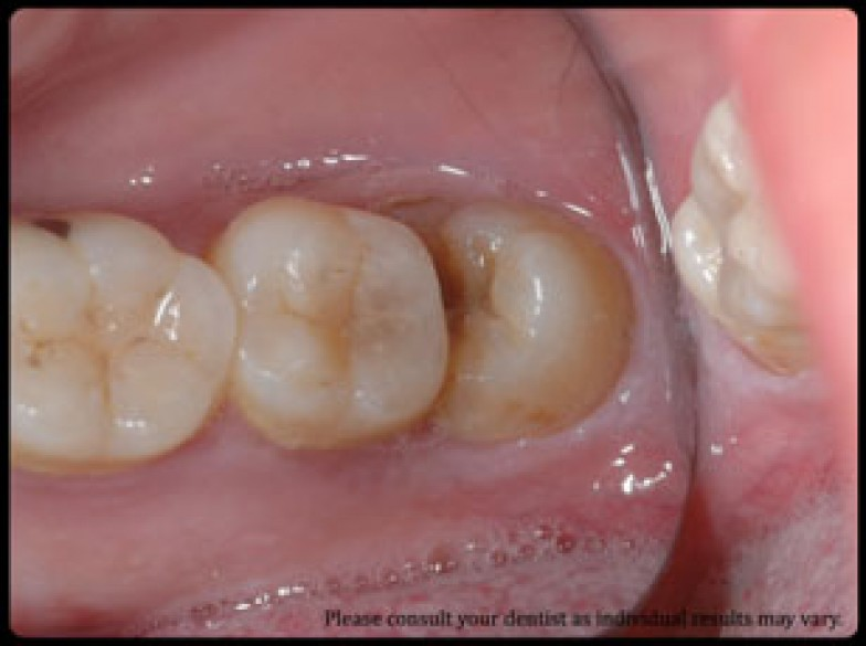 Wisdom-tooth-removal-784x400.jpg