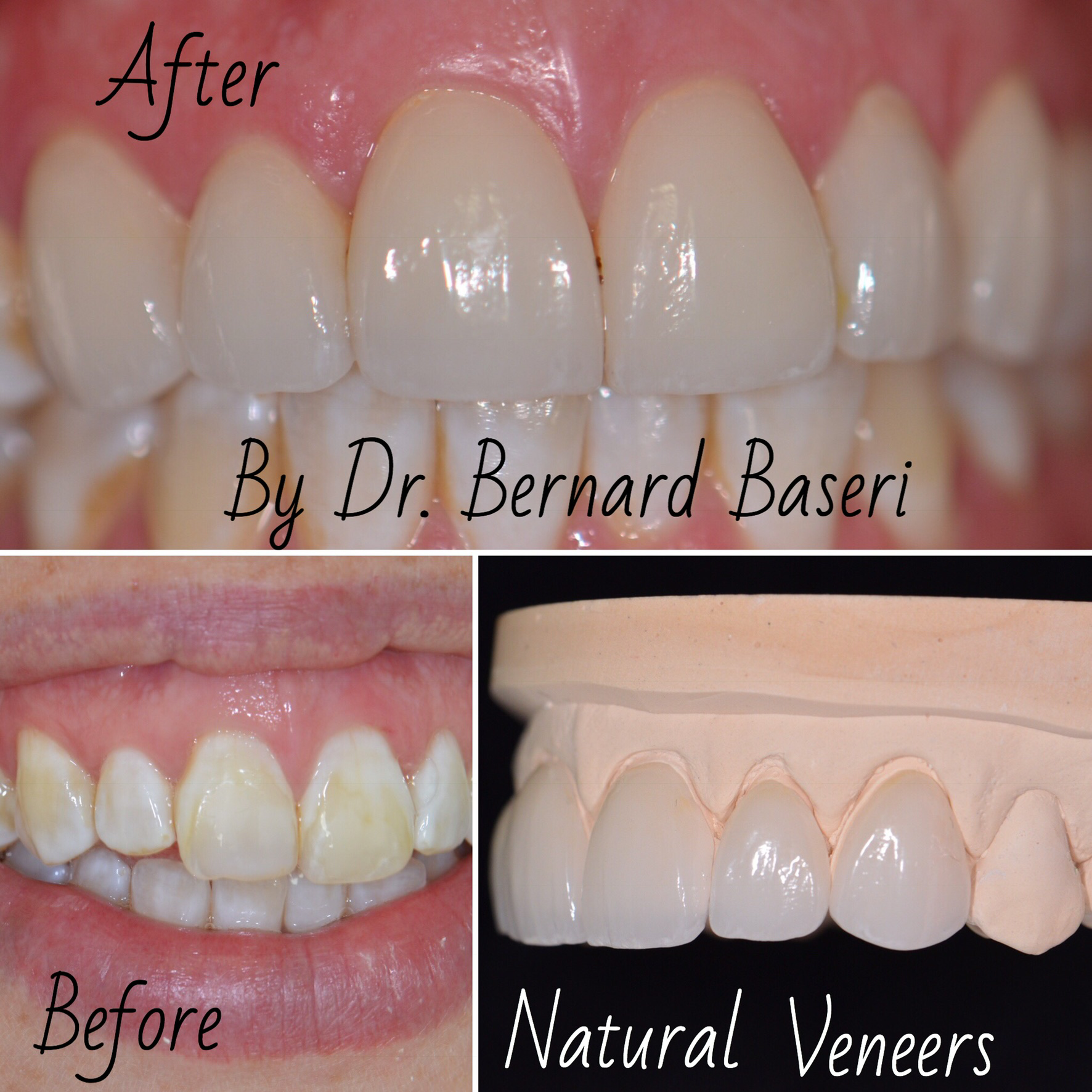 Tetracycline stained teeth restored with porcelain veneers