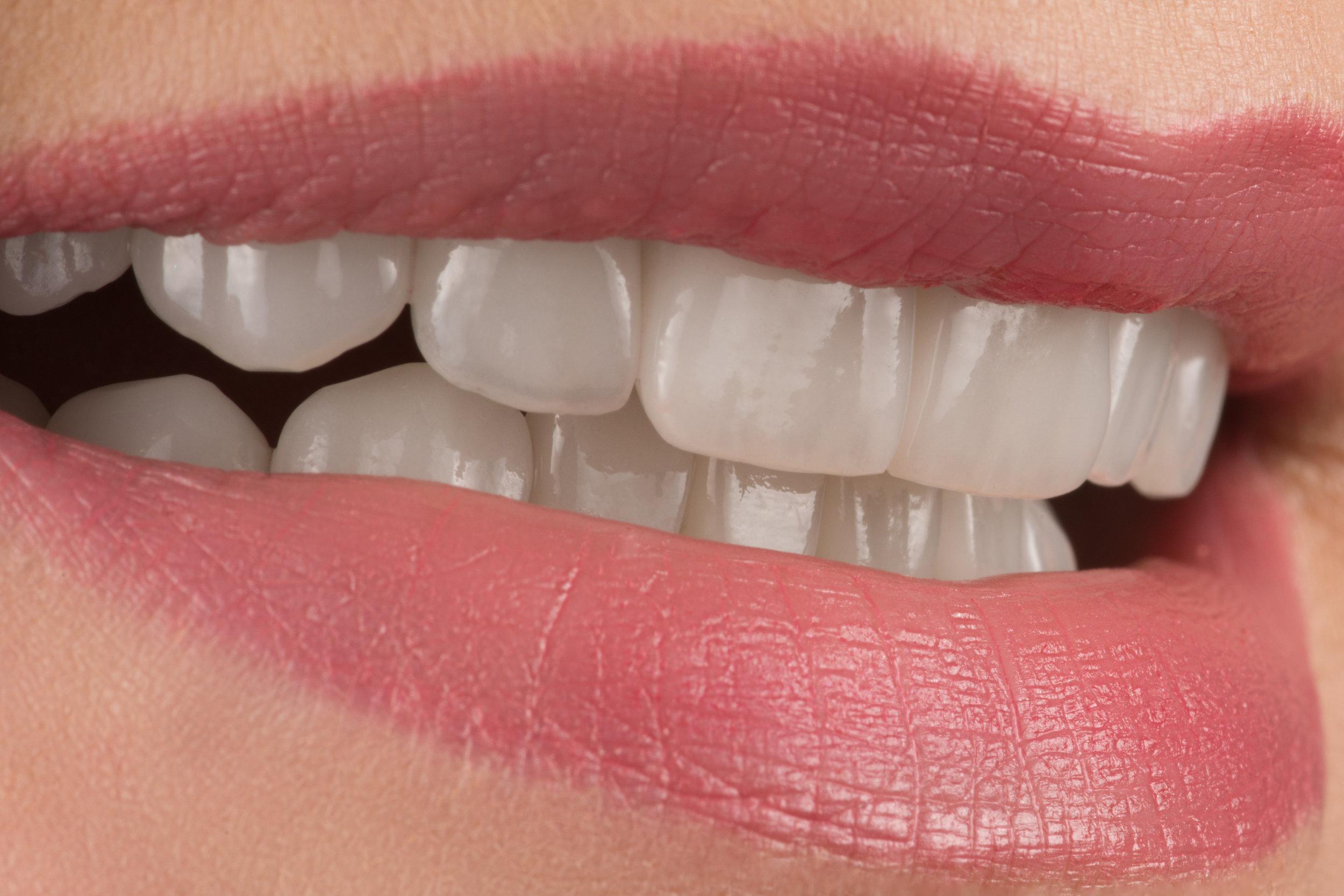 Dantys protezuoti dantų laminatėmis