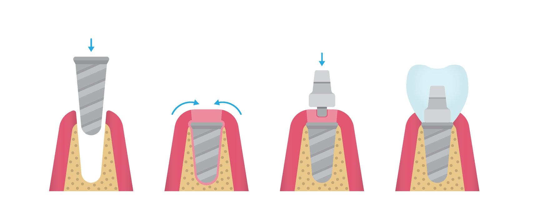 Dantų implantacijos eiga