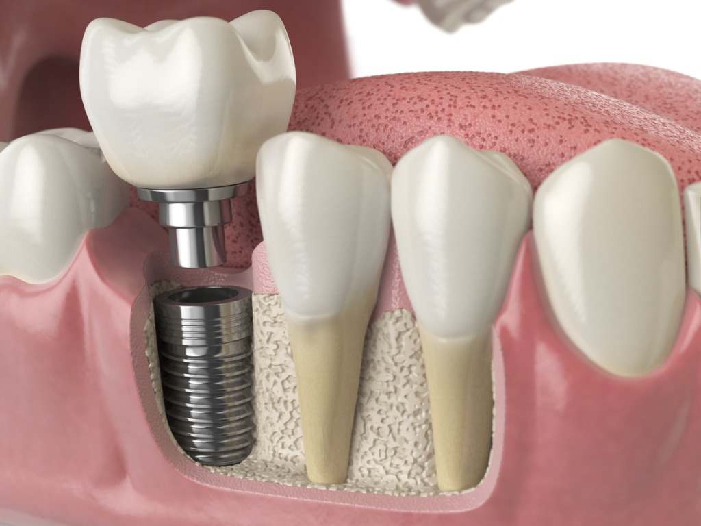 anatomy-of-healthy-teeth-and-tooth-dental-implant-in-human-denturra-picture-id886031480.jpg