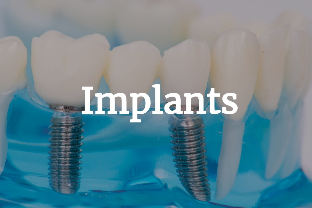 close-up-of-dental-model-with-implantation-picture-id876831838 (3).jpg