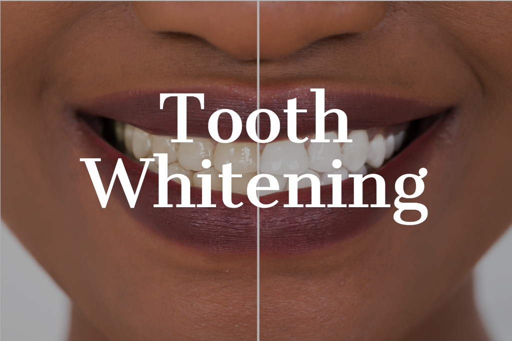 woman-teeth-before-and-after-whitening-picture-id842623938 (2).jpg