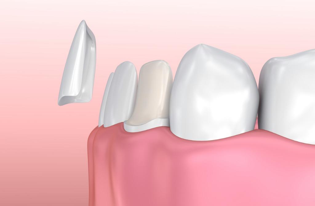 dental-veneers-porcelain-veneer-installation-procedure-picture-id621830860.jpg
