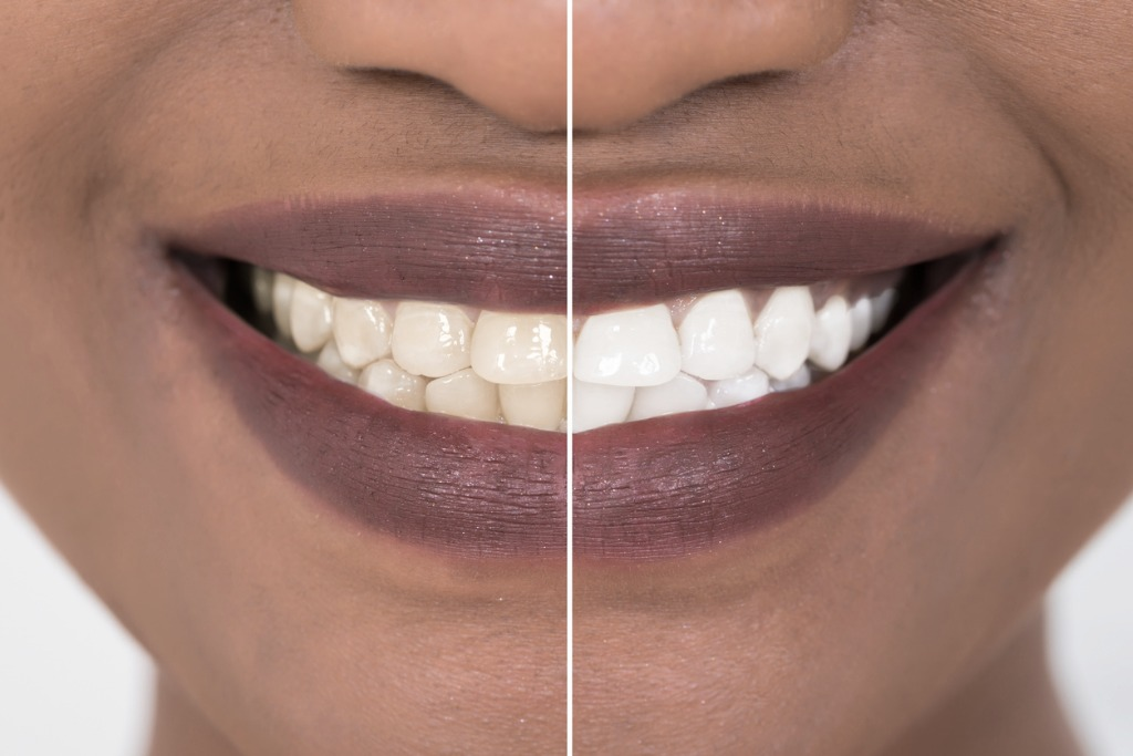 woman-teeth-before-and-after-whitening-picture-id842623938 (4).jpg