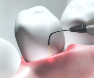 laser+dentistry.jpg