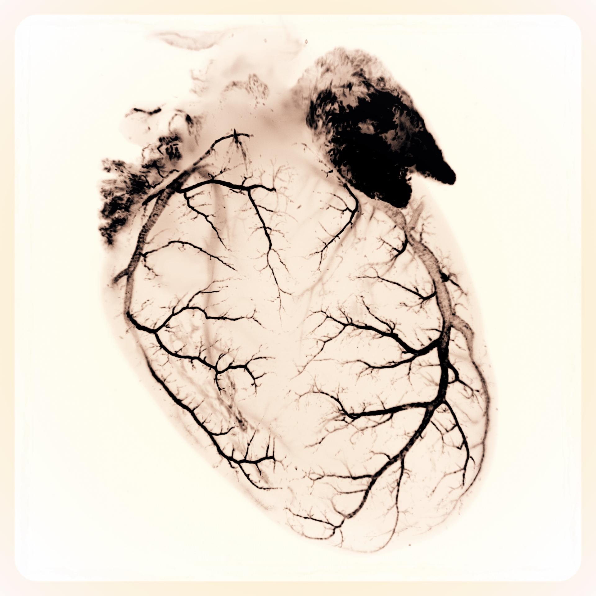 Lightsheet heart invert.jpg