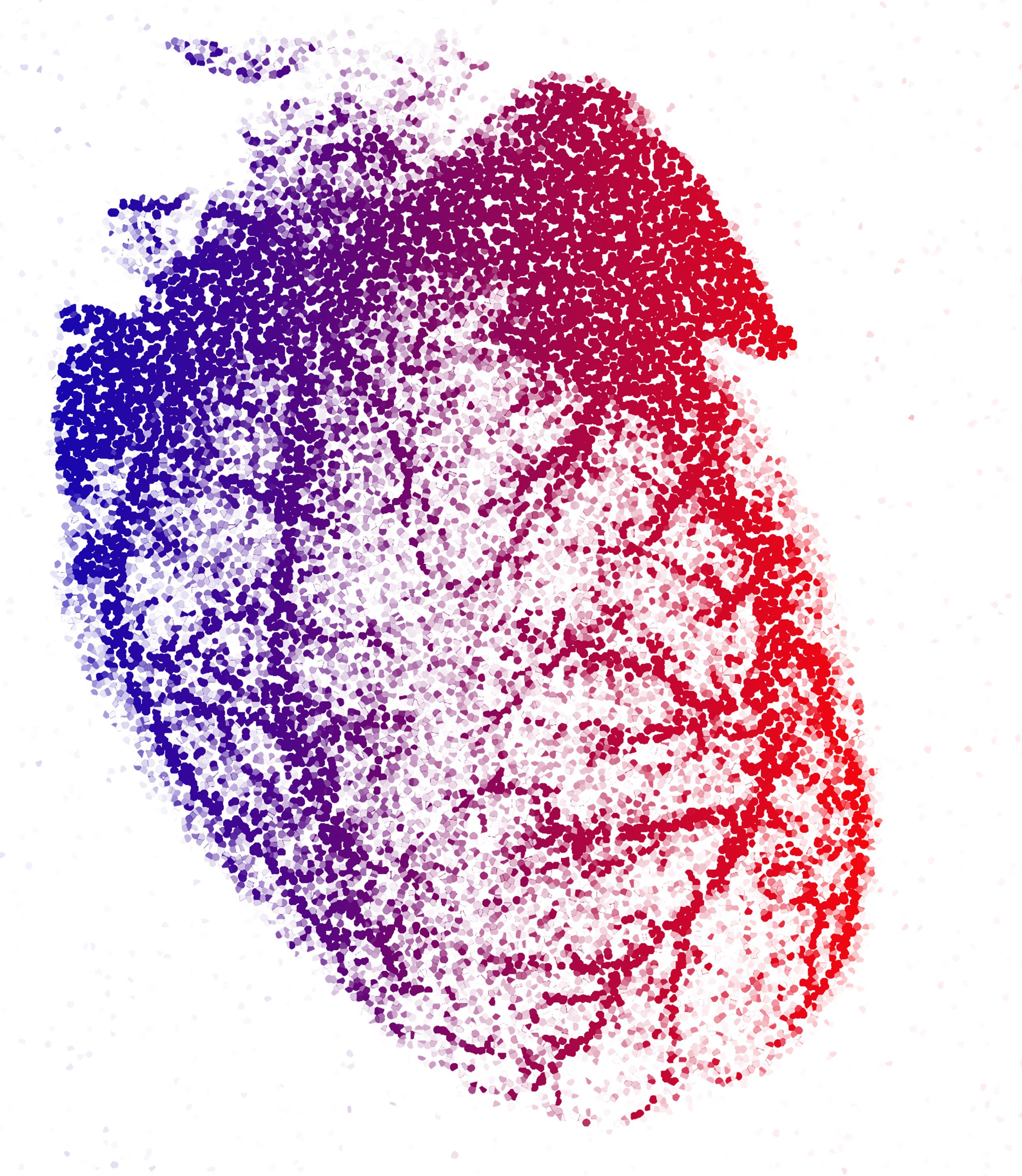 Pixilated coronary vessels B.jpg