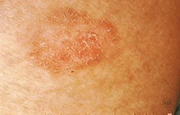 Skin Cancer Parknorthdermatology