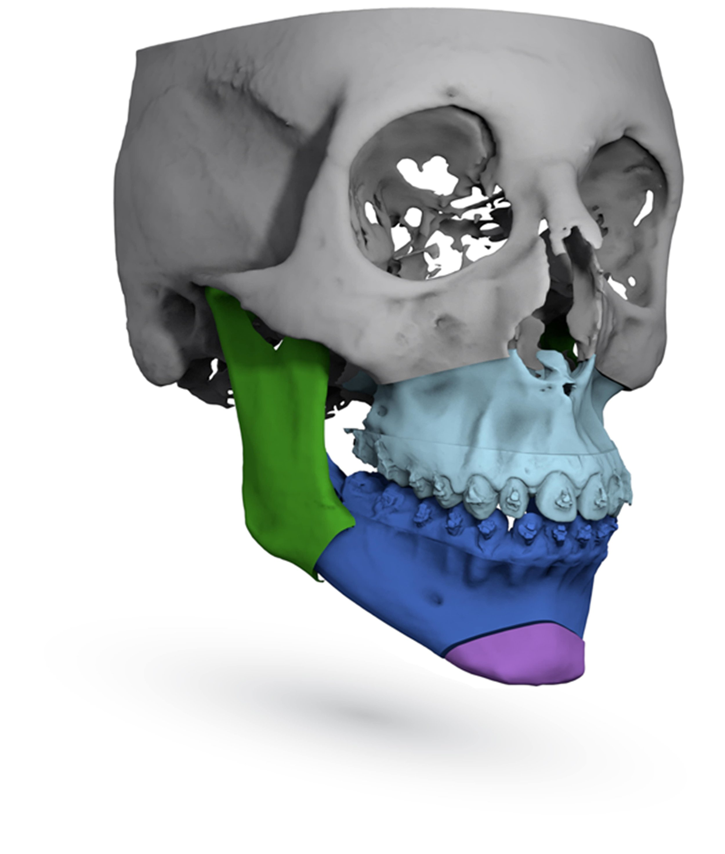 Fully Orthognathic Segmented Skull Image by ImmersiveTouch IVSP