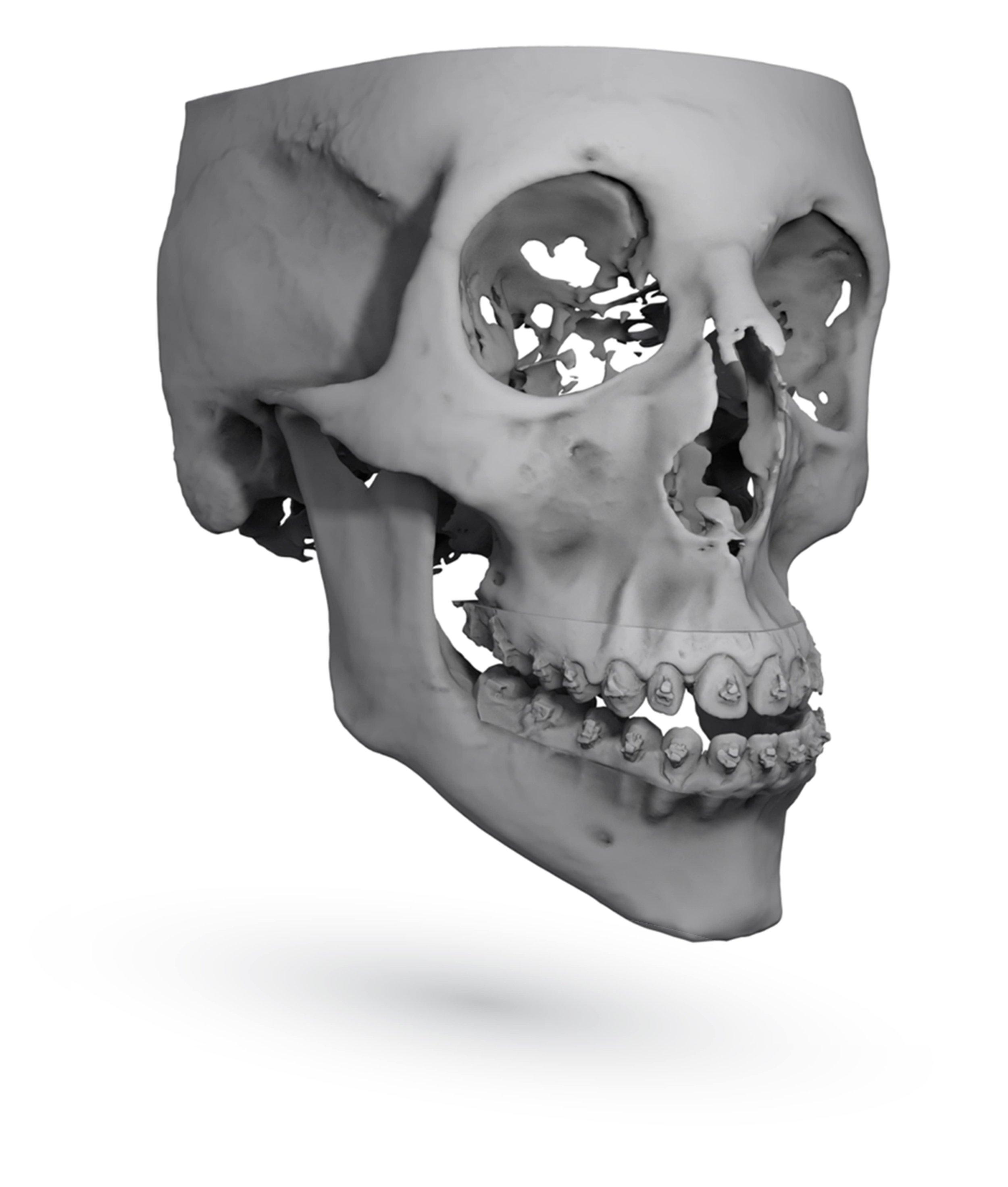 Final Orthognathic Skull Position by ImmersiveTouch IVSP