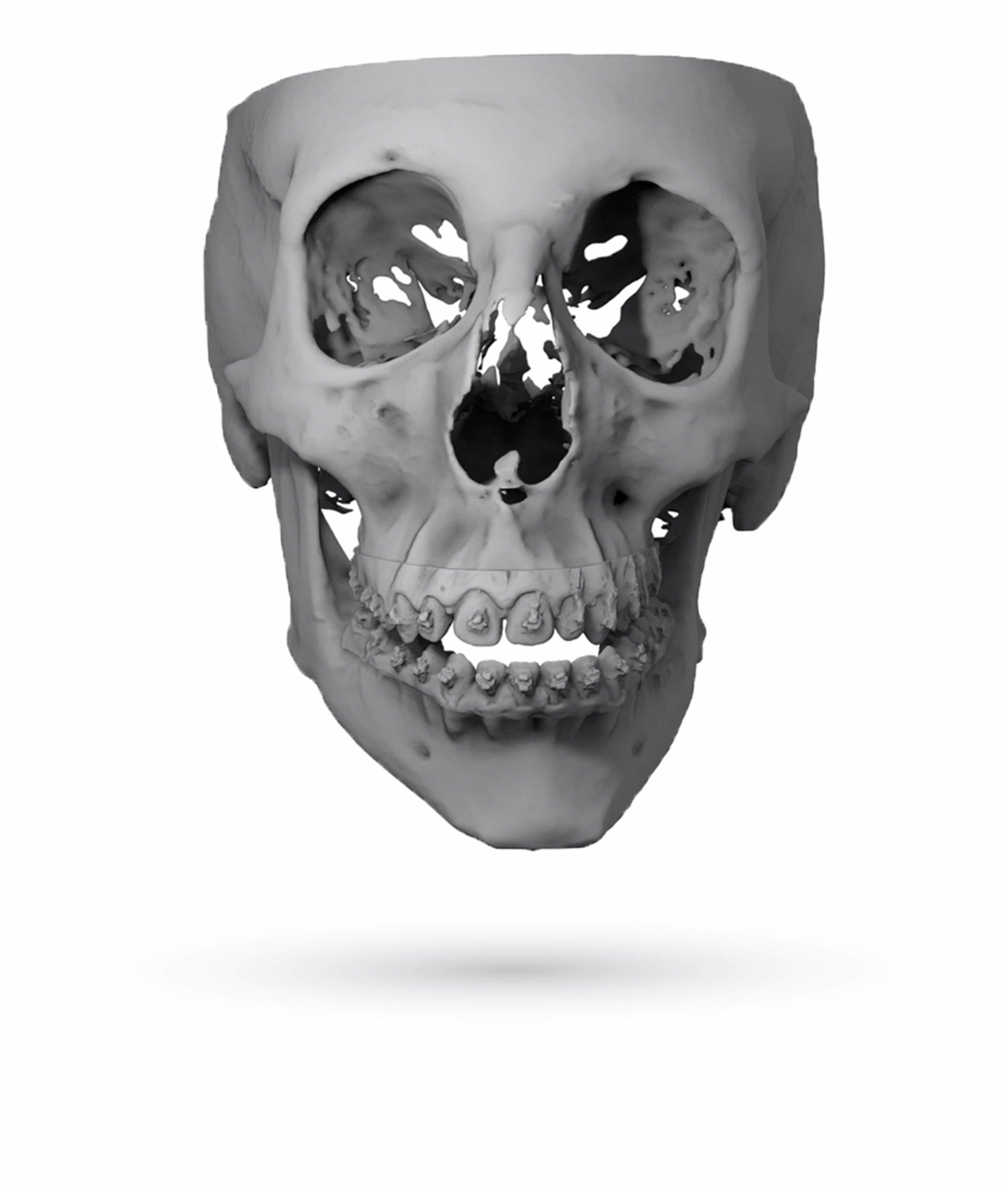 Orthognathic Skull Image by ImmersiveTouch IVSP