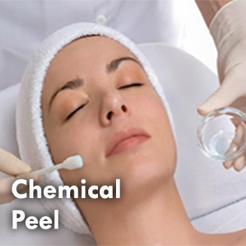 Chemical peel by Dermal Synergy