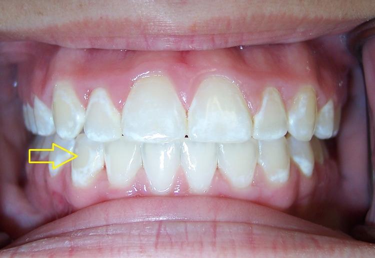 Braces_white_spot_lesions.jpg