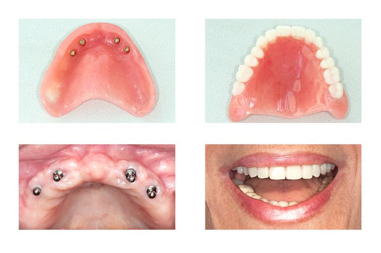 implants — Freeman Parkston Dental Center- Dr  Jason