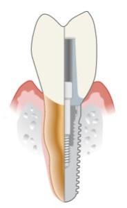 Implant_anatomy.jpg
