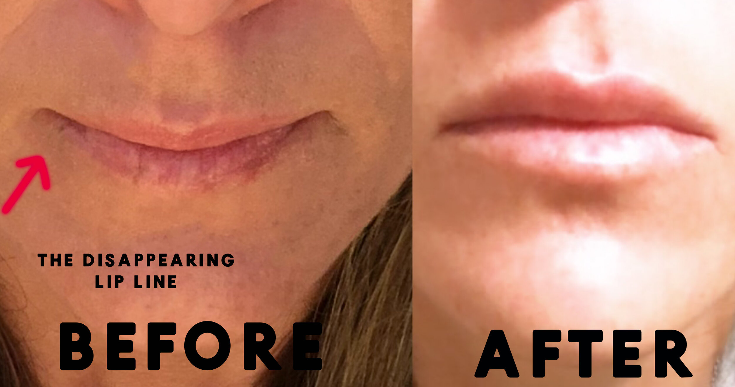 lip filler before and after pics