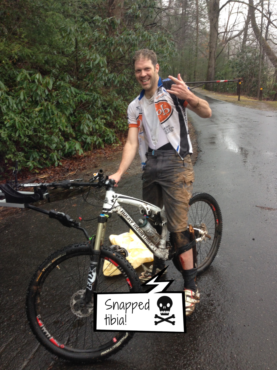 mountain biking injury snapped tibia entrepreneur