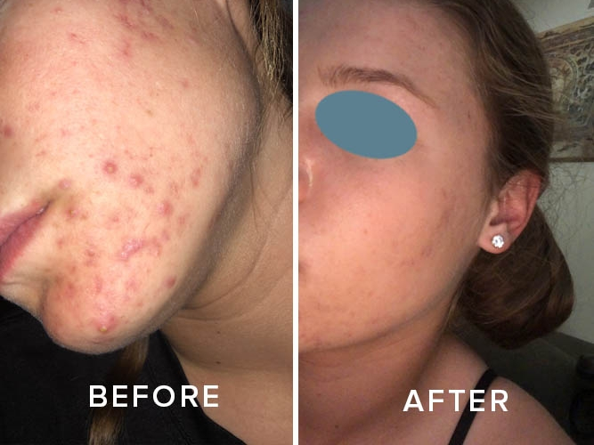 True Simplicity Acne Clinic Long Distance Clients 2