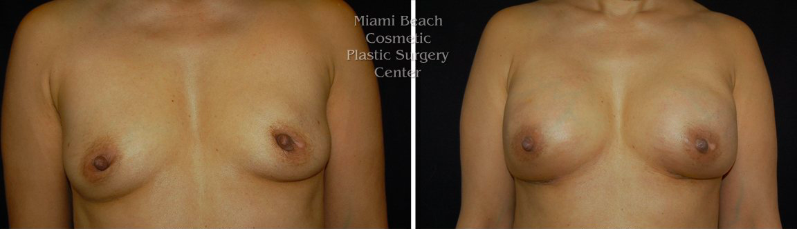 Pre Mastectomy                                                                 Post Reconstruction