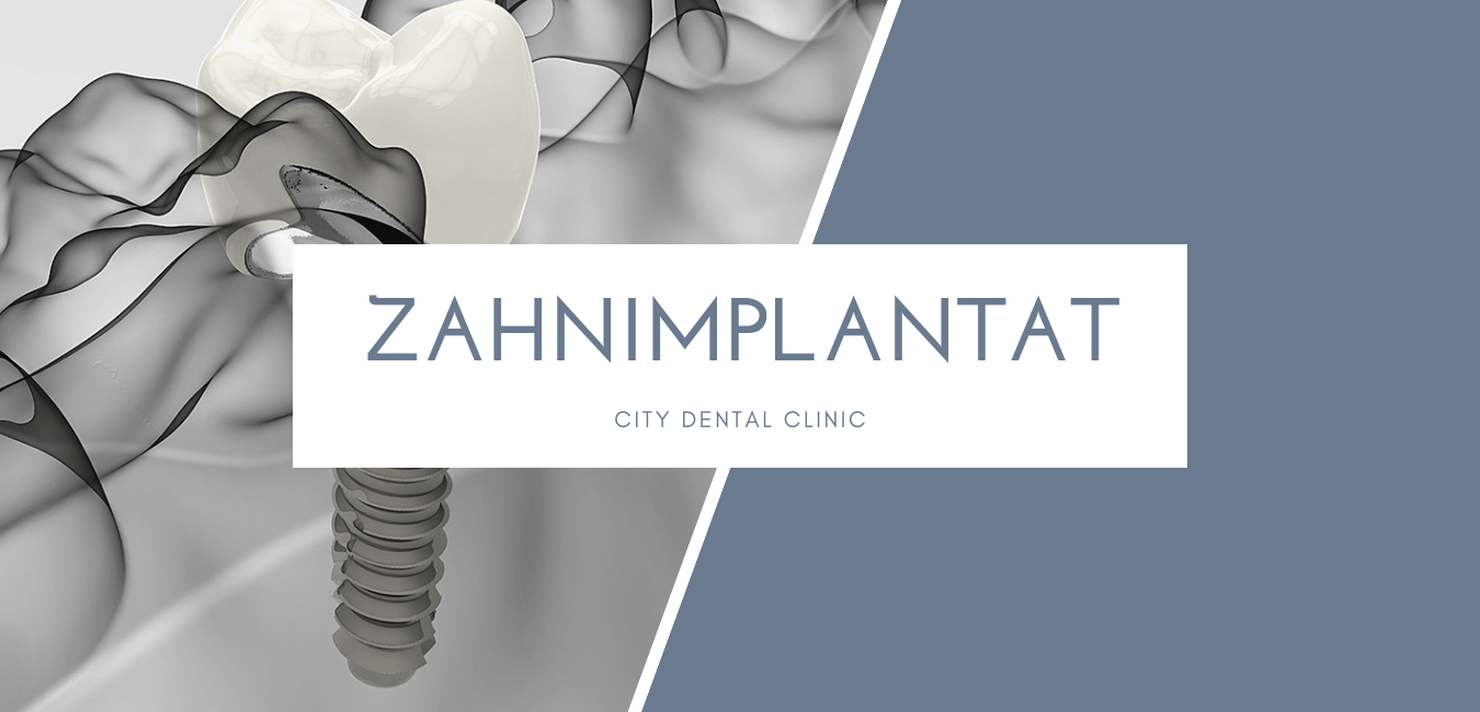 Zahnimplantate DE.png