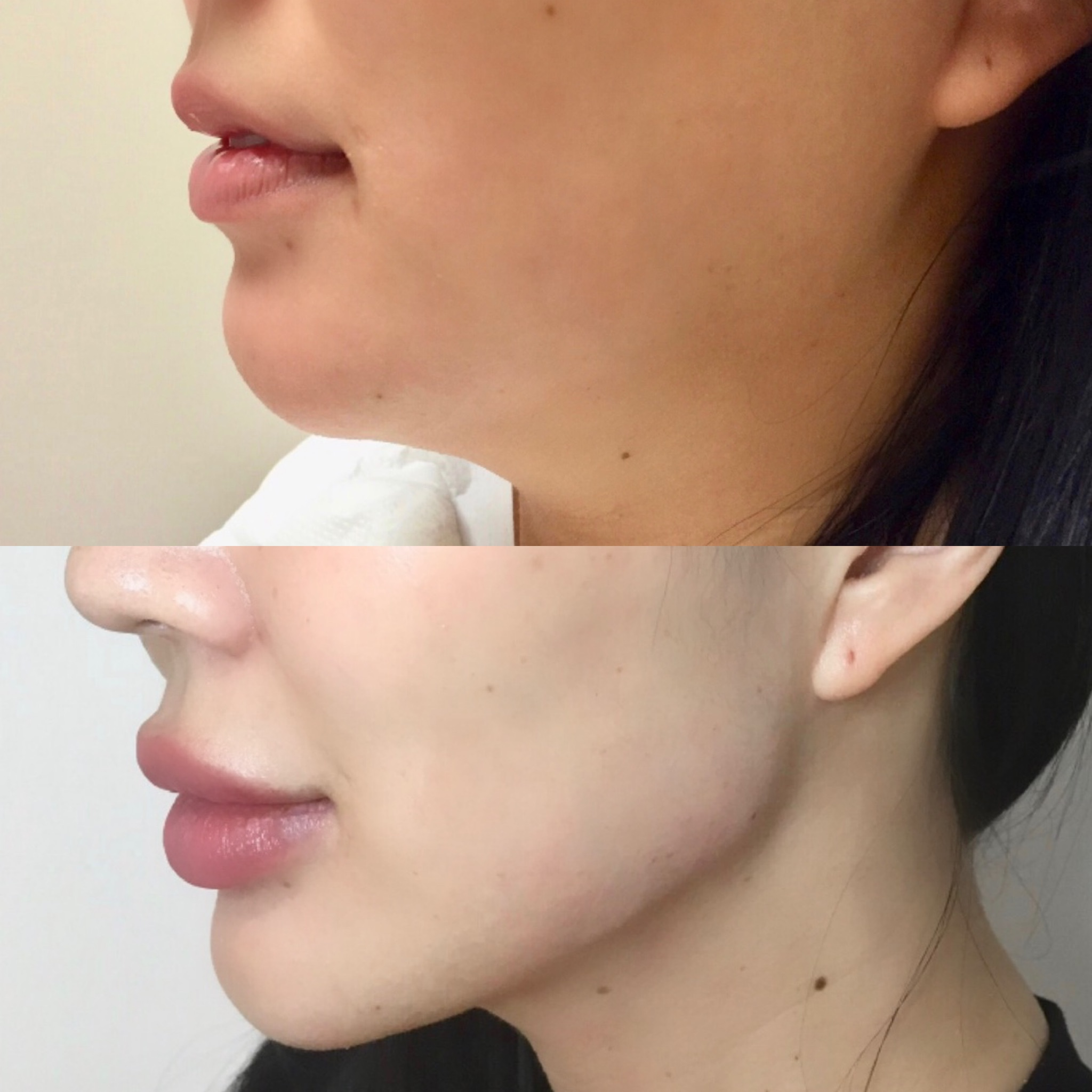 My Experience with Jawline Filler and Botox to the Masseters