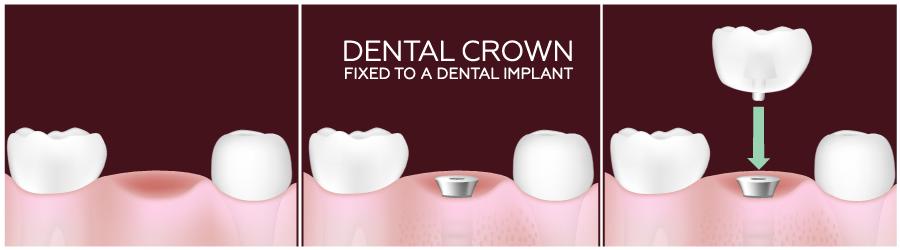 dental-crown-mississauga.jpg