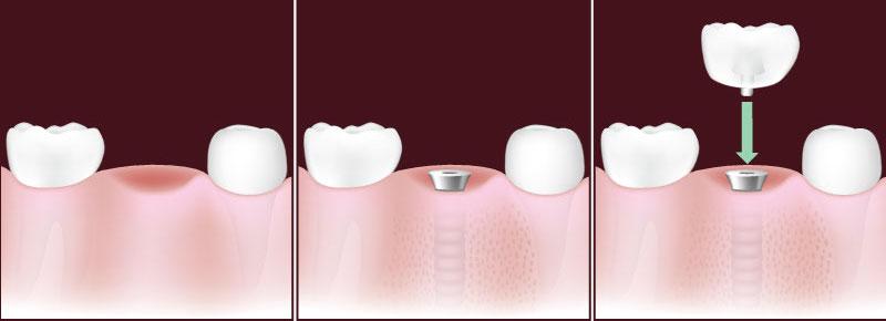 dental-implant-in-sudbury.jpg