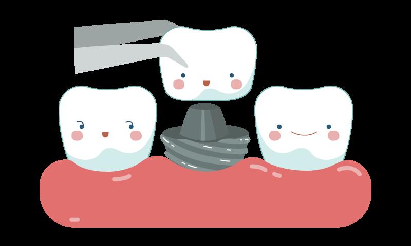 dental-crown-in-sudbury.png