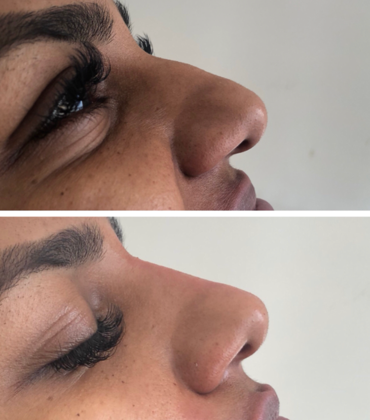Nose Slimming Treatment