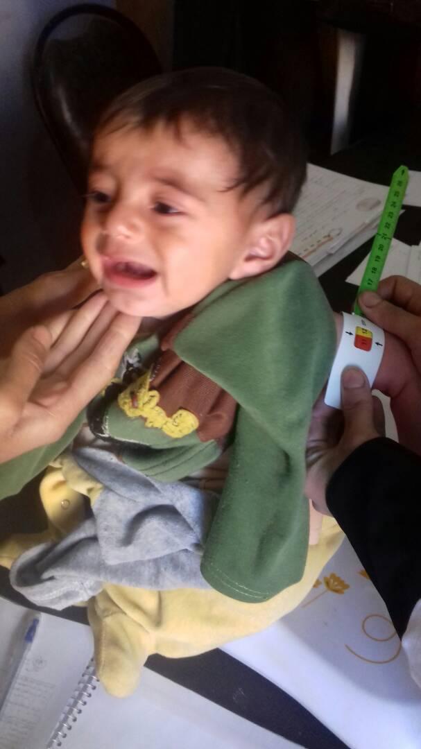 Mourad, survivant du siège d'Alep
