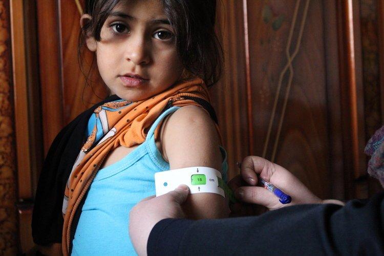 Une petit fille en etat de malnutrition