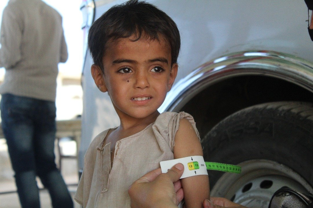 Un petit garçon en etat de malnutrition