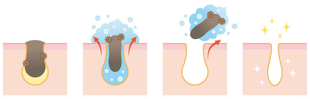 hydrafacial-eliminate-clogged-pores-kansas-city-dermatology.jpg