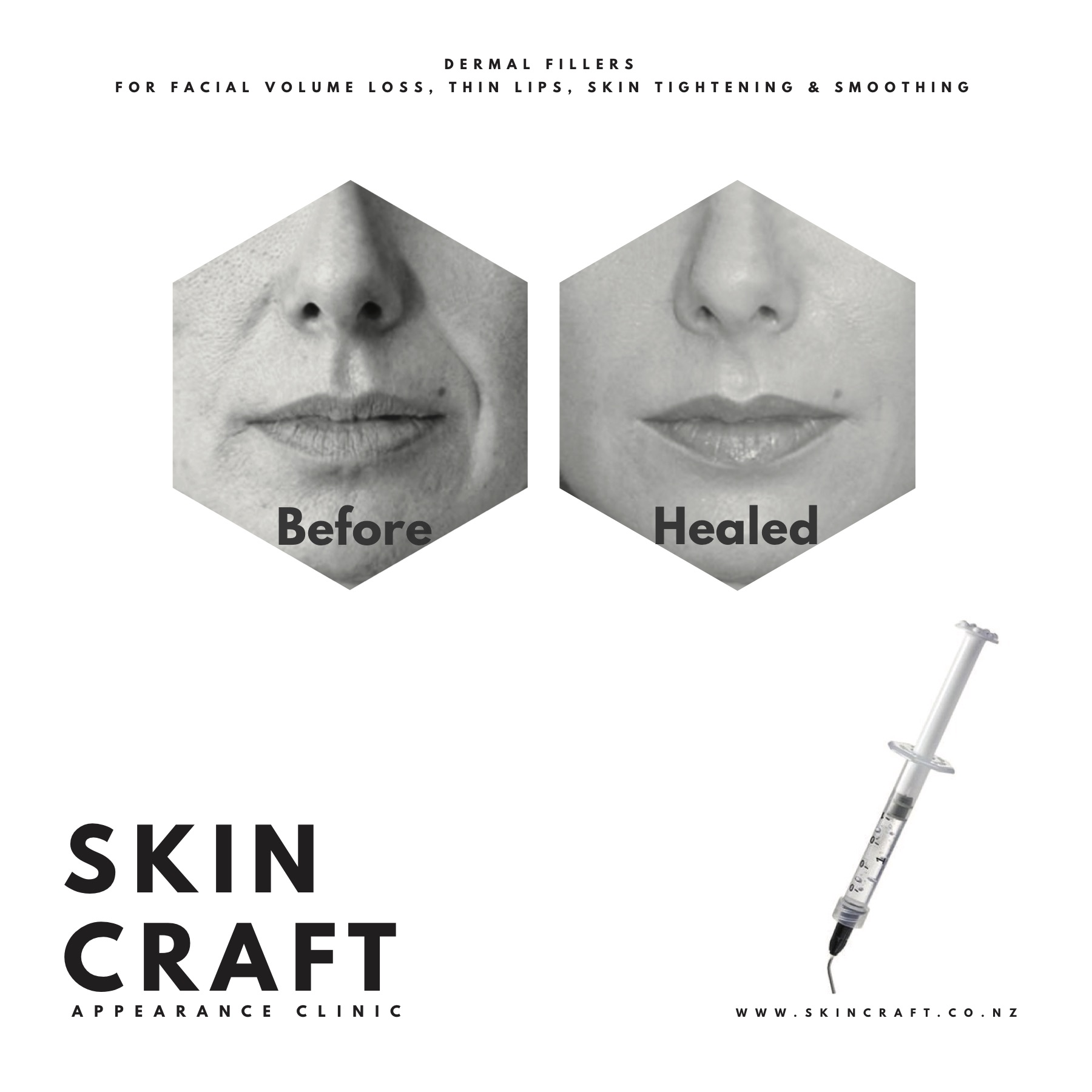 DERMAL FILLERS - Correct volume loss, wrinkles and folds instantly!Fillers are a cosmetic injectable that create an instant plump, youthful-looking skin with results lasting 12-24 months.Reducing the appearance of lines & wrinkles, creating fuller lips and facial volume, one of the most visible signs of aging.
