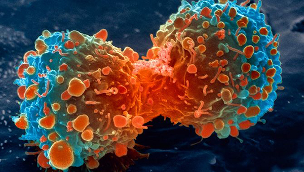 lung-cancer-cell-dividing-article.__v80030169.jpg