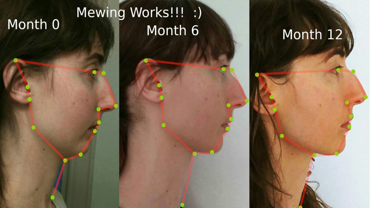 How a niche orthodontist technique took over YouTube - Can you really change your jawline with tongue posture? These YouTubers seem to think so. A piece investigating mewing for Vice News.