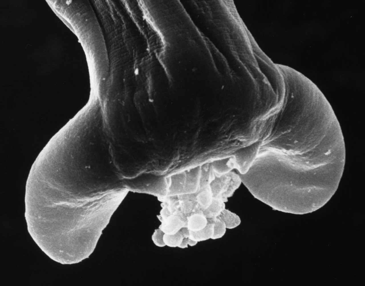 Adult Male with extruded copulatory bell SEM