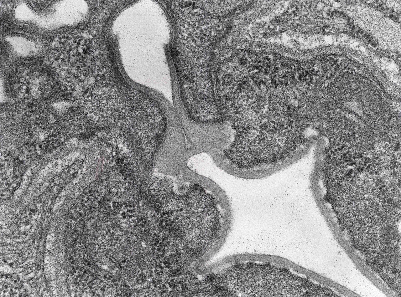 L1 esophagus and duct to stichocyte. Note cuticular lining of gut tract and duct. High magnification TEM.